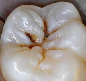 dental-cari-300x282