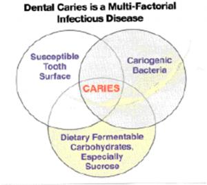 dental-cari2-300x267