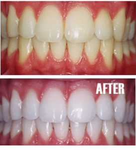 tooth-whitening-273x300