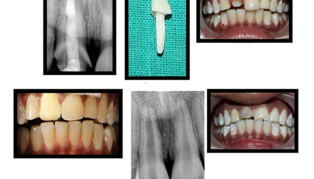CASE-WITH-ROOT-CANAL-TREATMENT-WITH-COMPOSITE-POST