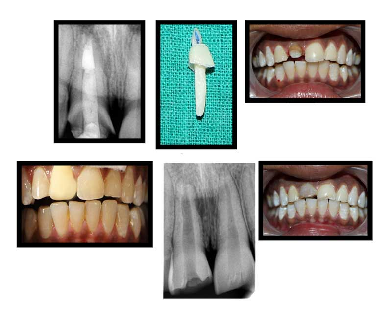 Root Canal Treatment With Composite Post