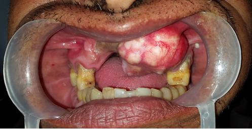 rare case of Chondroblastic Osteosarcoma