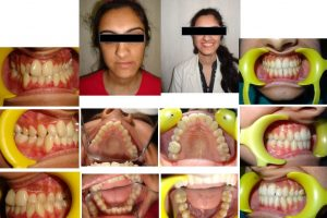 Orthodontics & Dentofacial Orthopaedics