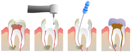 420px-Root_Canal_Illustration_Molar