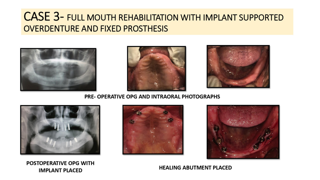 FULL MOUTH REHABILITATION WITH IMPLANT SUPPORTED OVERDENTURE AND FIXED PROSTHESIS