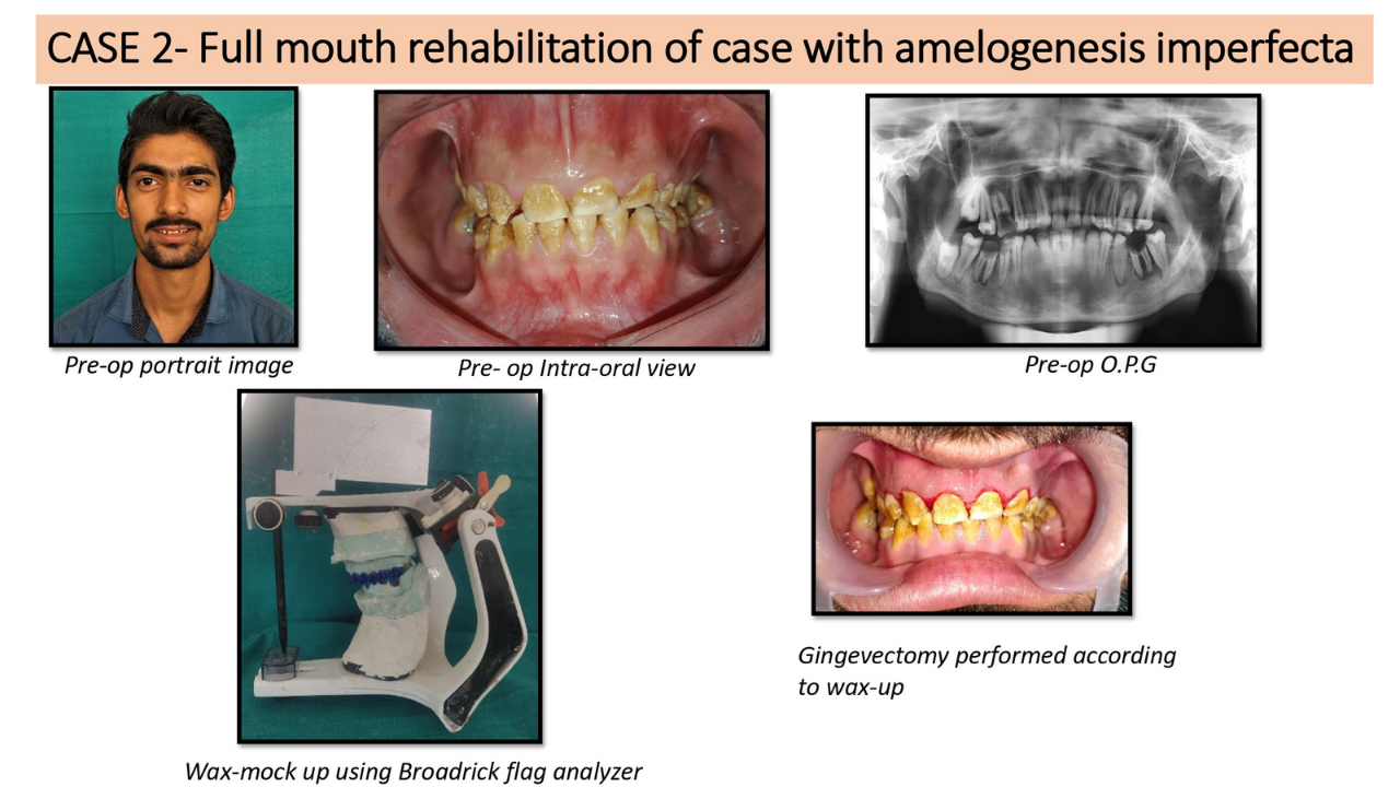 Full mouth rehabilitation of case with amelogenesis imperfecta