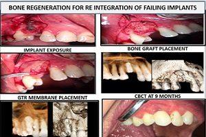 GBR surgical procedure