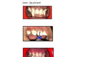 laser pocedure
